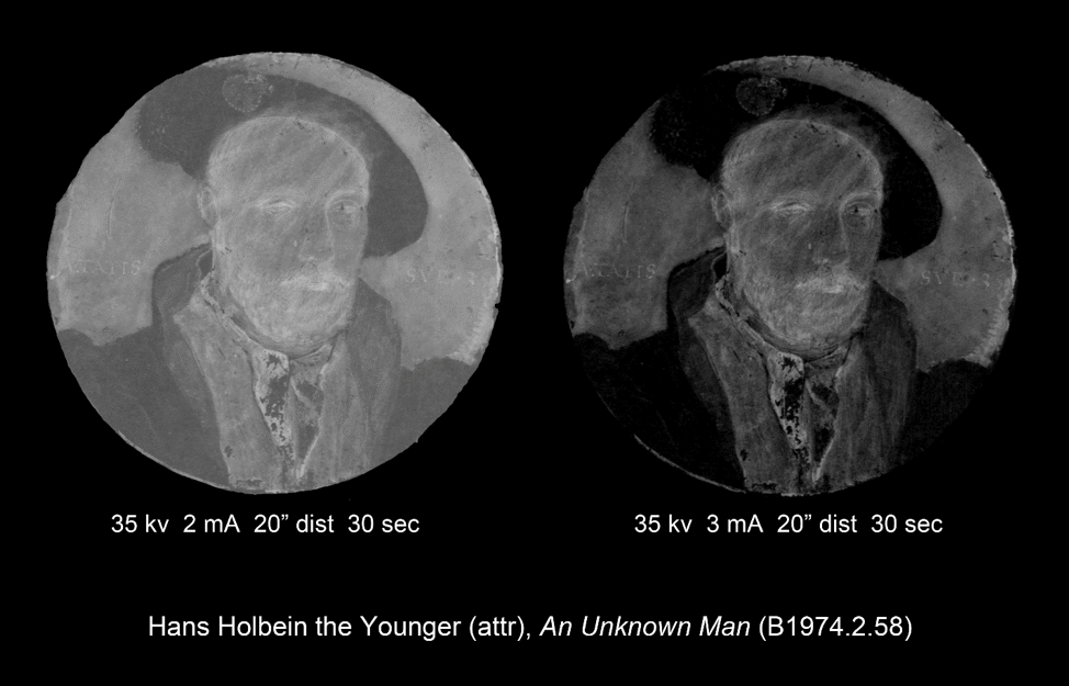 Attributed to Hans Holbein the Younger, Portrait of a man, probably Sir George Carew (ca.1504–1545) (detail), ca. 1540, X-ray images by Eric Stagmaier